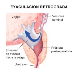 eyaculacion-retrograda-sexologos